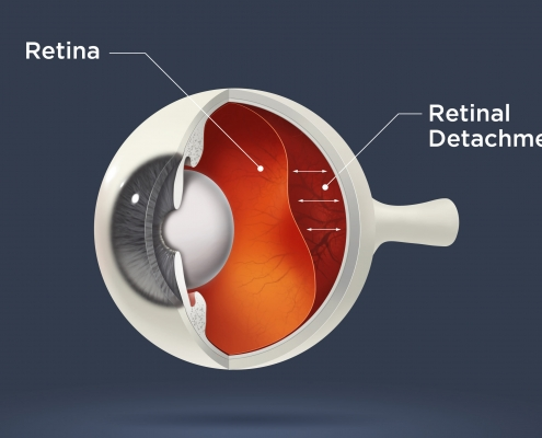Retina detachment Treatment