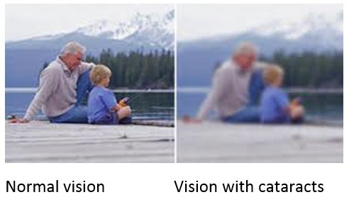 How will cataract impact your life